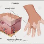 vitiligoo