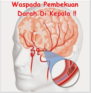 darah beku di kepala dapat di obati dan di atasi dengan QNC JELLY GAMAT secara TUNTAS MENYELURUH EFEKTIF ALAMI serta AMAN