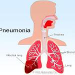 pneunomia