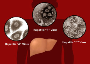 Hepatitis-Virus-Liver